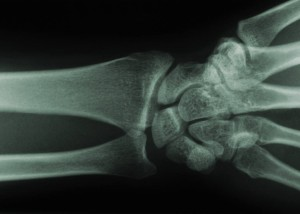 wrist xray showing carpal bones of the wrist